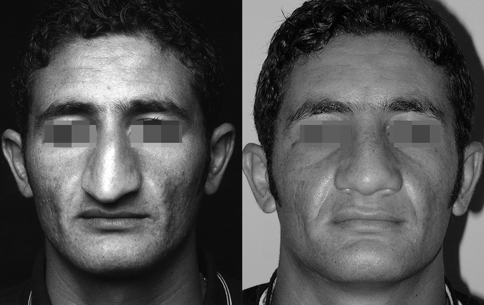 rhinoplastie reparatrice marseille et martigues photo 1
