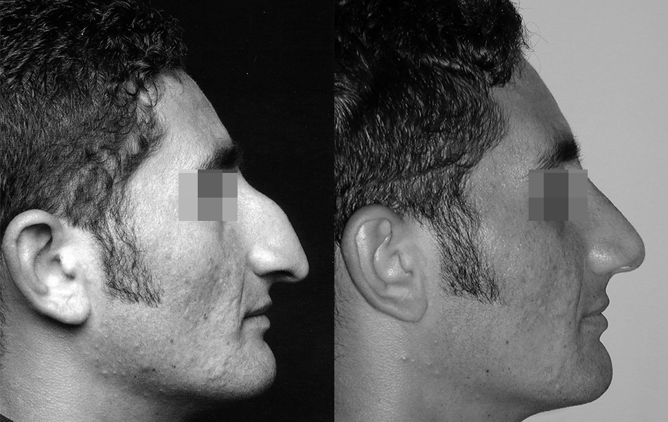 rhinoplastie reparatrice marseille et martigues photo 2