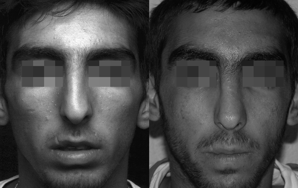 rhinoplastie reparatrice marseille et martigues photo 3