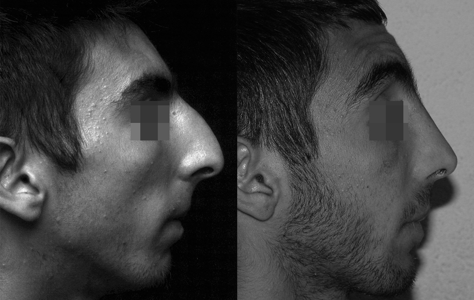 rhinoplastie reparatrice marseille et martigues photo 4